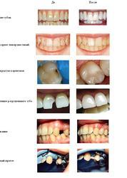 стоматология,  лечение зубов и десен